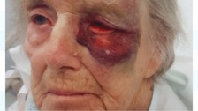 Gladys Millard suffered bruising to her eye and arm