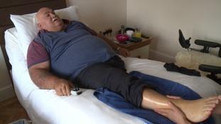 Man has leg amputated after hospital failings