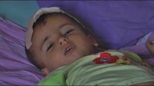 Injured child in Azaz.