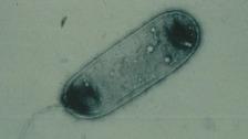 Legionnaires'