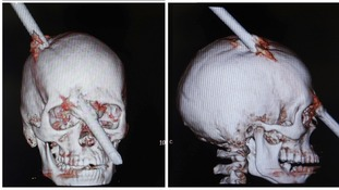 Eduardo Leite survived after being pierced through his skull by a 2-metre rod