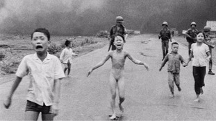 Girl pictured with horrific burns after Vietnam War napalm strike undergoes laser treatment