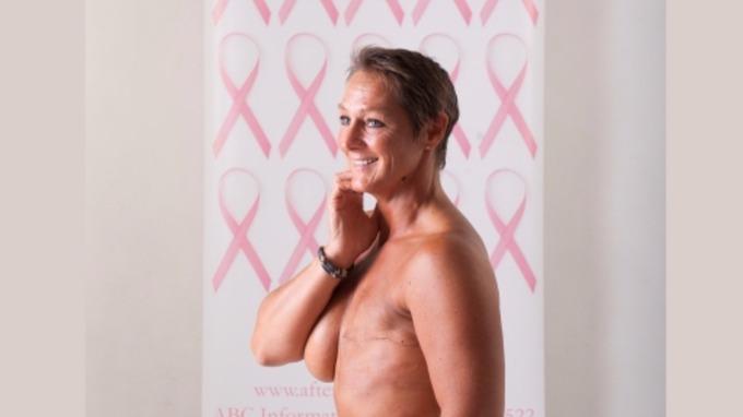 survivors nude breast cancer