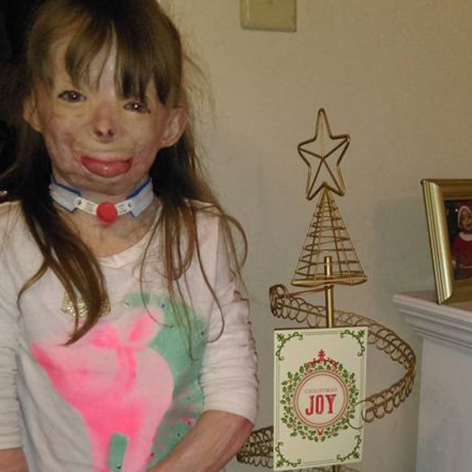 us girl with severe burns has one wish this christmas to receive