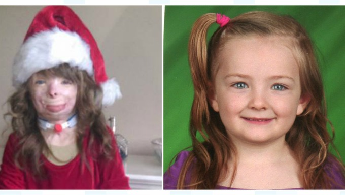 US girl with severe burns has one wish this Christmas - to receive ...