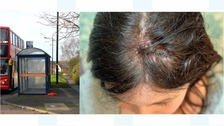 Jo Brandon was left with a fractured skull after she was hit by a brick thrown through a bus window.
