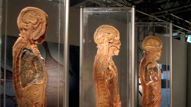 Preserved Human Body Exhibition To Open In Liverpool City Centre