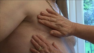 Breast Cancer in Men: Do you know the signs?