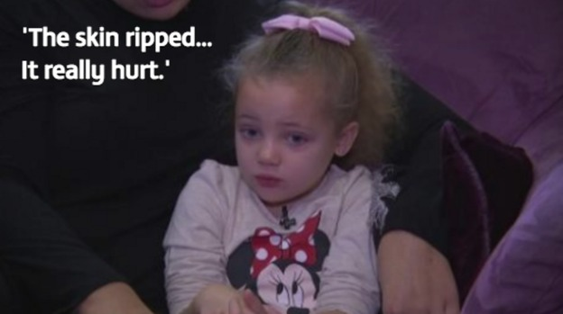 4 Year Old Girl Glued To Mcdonald S Loo Seat In Cruel