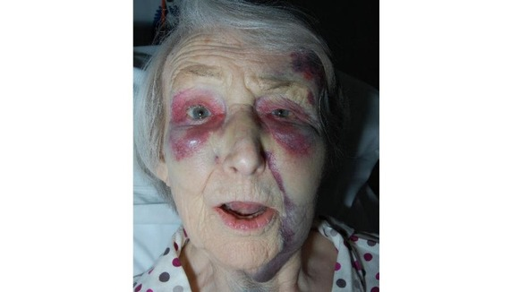 The victim of the attack, with severe bruising to her face.