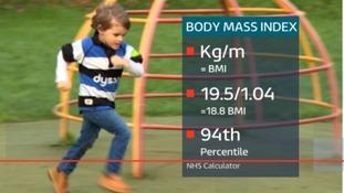 Jack McKenzie's BMI
