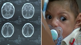 The brain scans that show the devastating impact of the Zika virus