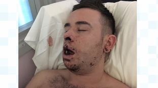 Shocking picture shows horrific injuries five thugs inflicted on young man after he left Northern Quarter bar