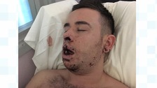 Ryan King in hospital after suffering a broken jaw in the attack
