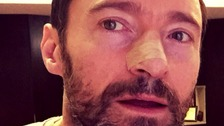 Hugh Jackman warns 'use sunscreen' after fifth cancer scare