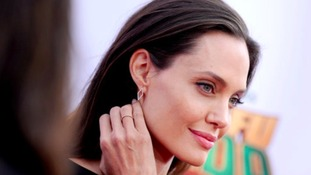 Angelina Jolie also had the surgery.
