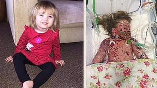 Faye Burdett, who died from meningitis