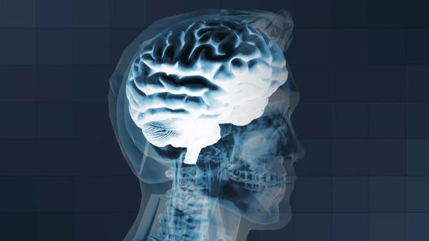 Brain_VT