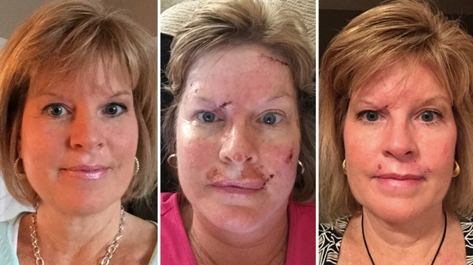 Judy Cloud's most recent surgery was to remove 23 skin cancer spots from her face