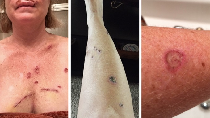 The 49-year-old has had four surgeries for skin cancer