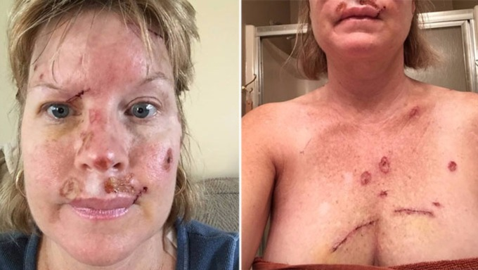 Judy Cloud, 49, shows the scars of her skin cancer from too much sunbathing