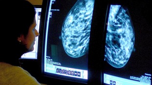 Combining cancer drugs 'dramatically shrinks tumours in 11 days', UK doctors find