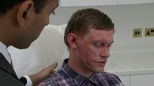Darren Pidgeon had third-degree burns.