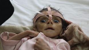 starving baby in Yemen