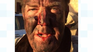 'I survived the day': Clarkson shares picture of  bloodied face