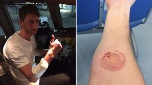 Passenger bitten while helping British Airways crew tackle 'violent passenger'