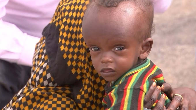 Thirty years after Ethiopia's horrendous famine a desperate battle is being fought to save another generation.