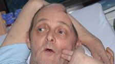 Kirk Hutchinson was attacked in Bacup in October. He will need medical care for the rest of his life.