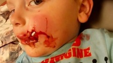 The three-year-old was bitten while out walking with his father.