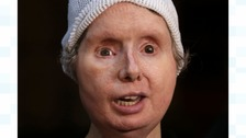 Charla Nash lost her face when she was attacked by a neighbour's chimp