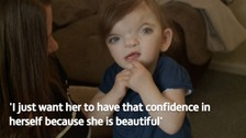 A mother is calling on people to be more understanding of people with facial disfigurements