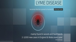 How to check for symptoms of Lyme Disease
