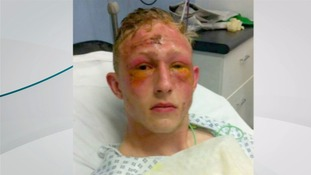 Unprovoked acid attack leaves five teenagers injured
