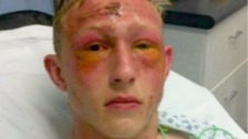 Teenager 'may lose sight' after unprovoked acid attack at train station
