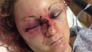 Zoe Dronfield was stabbed by her ex-partner Jason Smith.