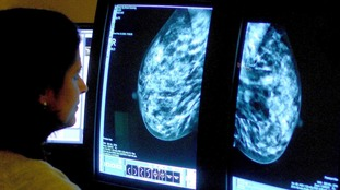 Around 11,500 people die from secondary breast cancer in the UK each year.