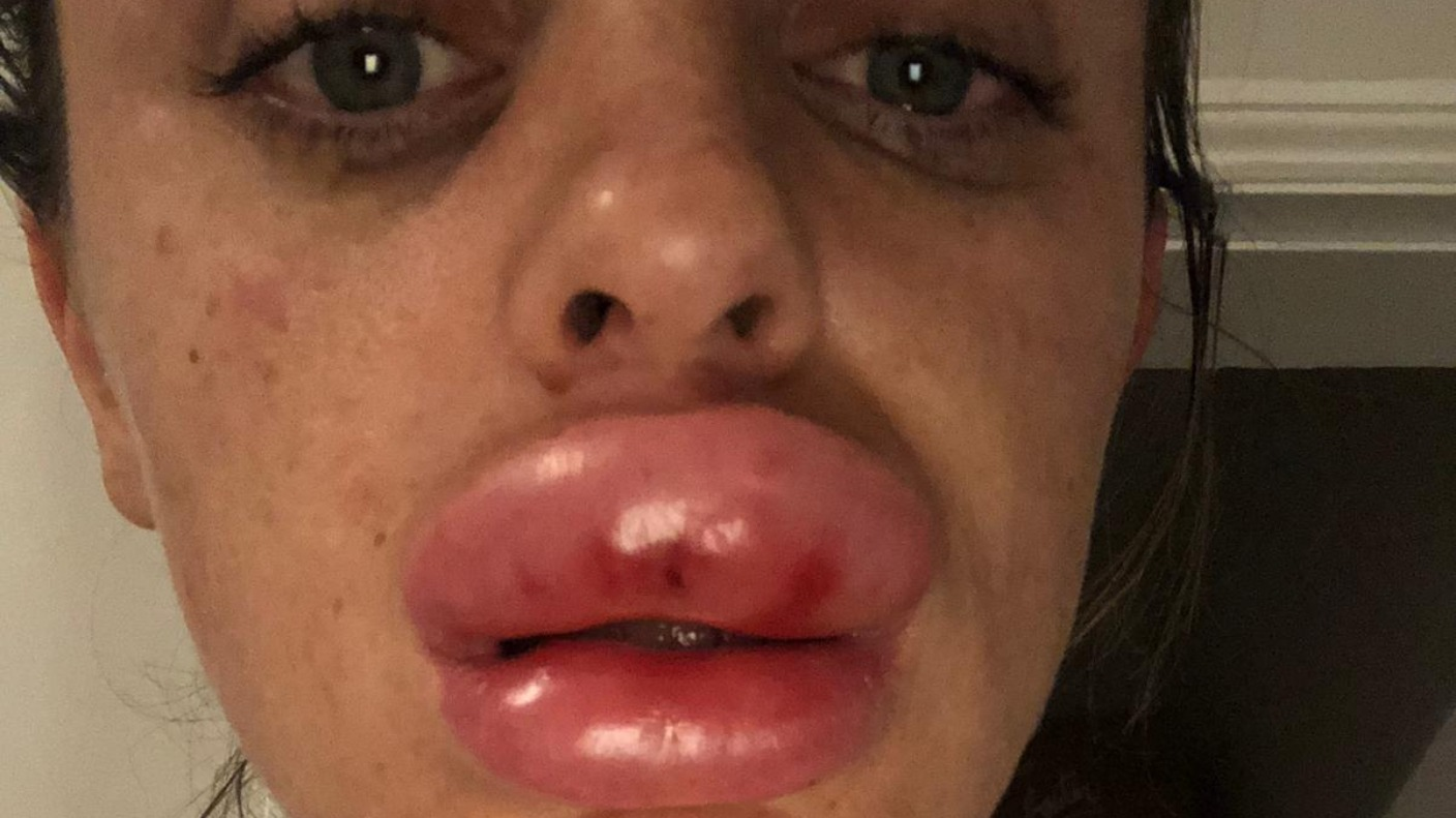 Warning After Lip Filler Injection Goes Wrong Central