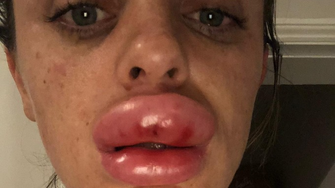 Warning after lip filler injection goes wrong | Central