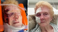 Pensioner left with 'nasty injuries' after being dragged along by car thief