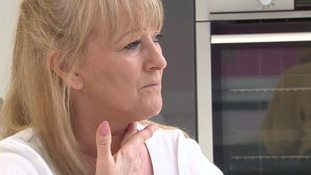 Joanne Smith from Bedford has had a new tongue made from part of her arm.