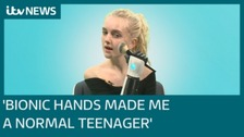 'How my bionic hands made me a normal teenager'
