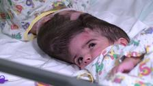 Conjoined twin girls separated at Great Ormond Street