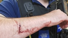 Wound on PCSO Bushen's arm