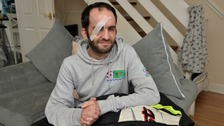 Leicestershire biker permanently blinded after being hit by egg