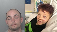 left picture of Jerome Mugshot and on the left it's Max clark in hospital