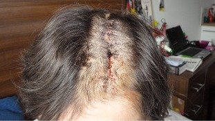 Police have released this image of Suzanne Ratajova's injuries